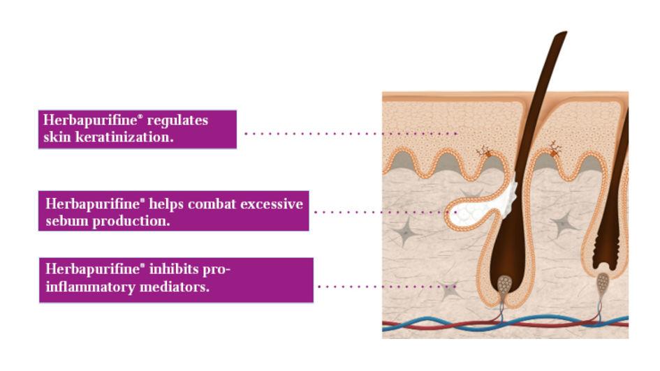 Herbapurifine® intervenes on different levels to effectively combat skin impurities